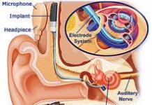 Alojamiento del implante en el sistema auditivo