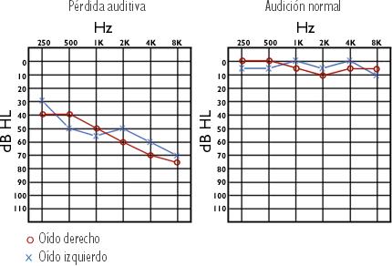 Audiometria con perdida auditiva y de un normaoyente