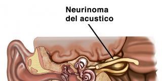 El Neurinoma del acústico tumor benigno
