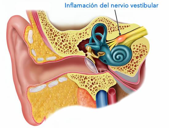 La neuritis vestibular y la inflamación del nervio