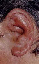 ¿Qué es la pericondritis auricular?